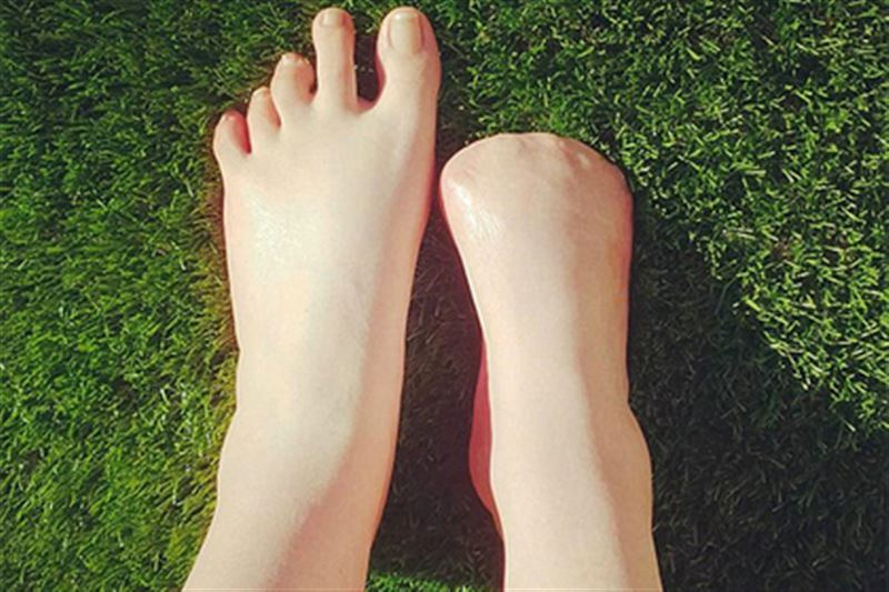 Женщина лишилась всех пальцев на ноге после рыбного педикюра