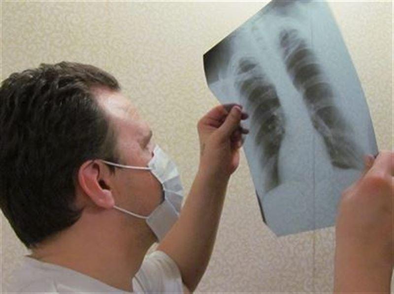 Астанада 3 жасар сәбиден туберкулез ауруы табылды