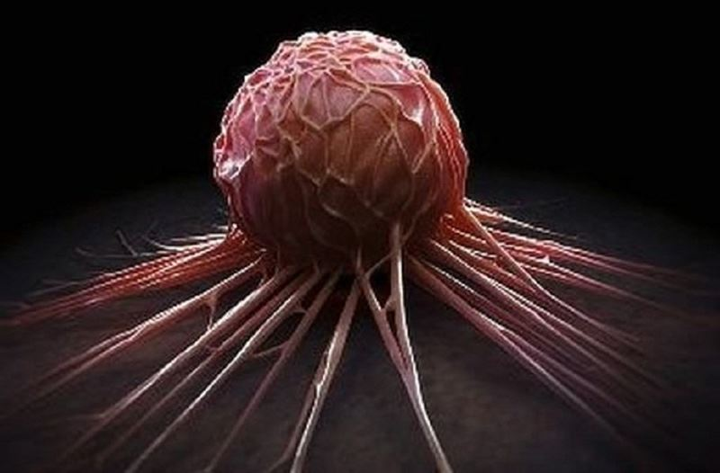 Найден способ борьбы против одной из опаснейших форм рака