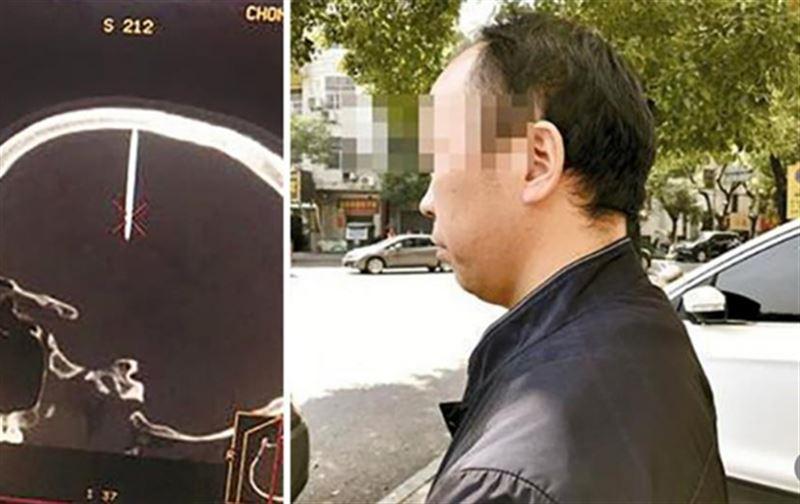 Китаец неделю ходил с 5-сантиметровым гвоздем в мозгу
