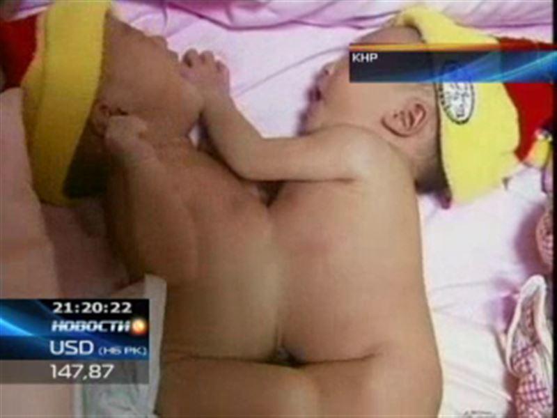 В Китае родилась пара сиамских близнецов