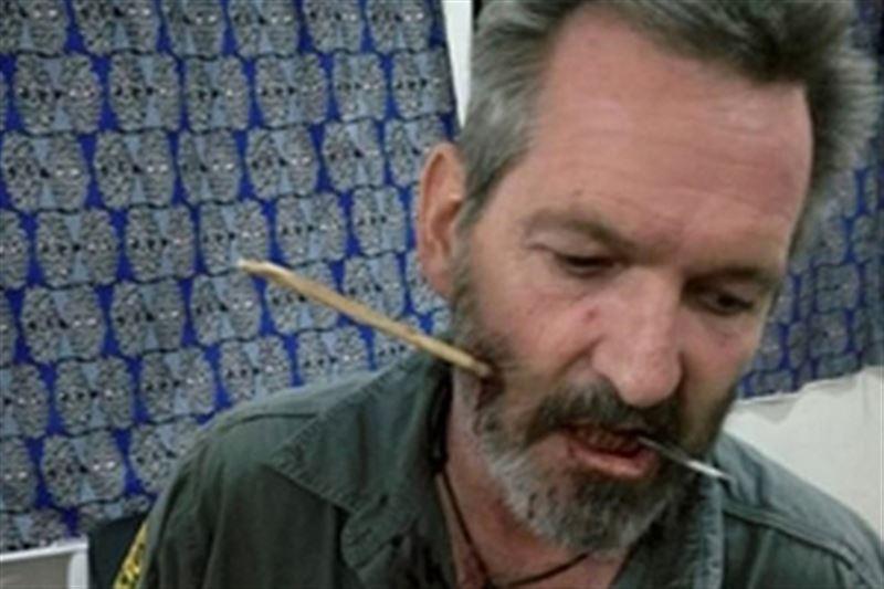Рейнджер в Кении выжил после попадания стрелы в лицо