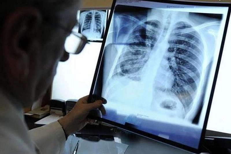 Туберкулездің қауіпті түрімен ауыратын 6 адам іздестіріліп жатыр