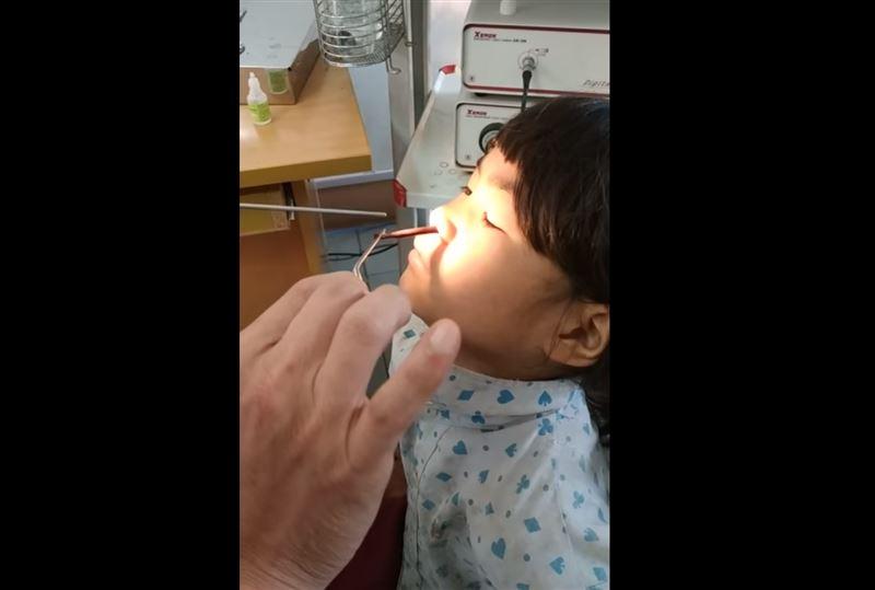 Из носа шестилетней девочки вытащили большую пиявку