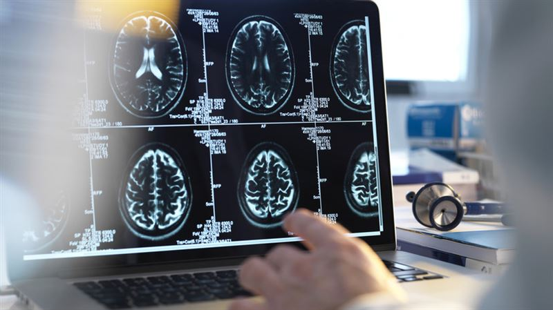 Мозг женщин стареет медленнее, чем мозг мужчин