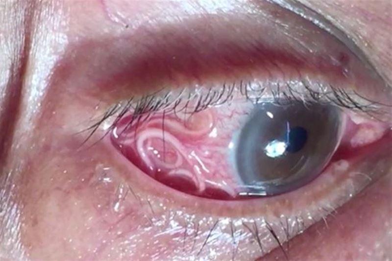 Хирурги удалили из глаза женщины огромного червя
