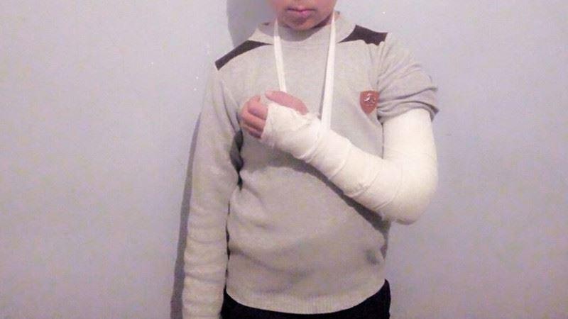 Учитель школы в Узбекистане сломал школьнику руку