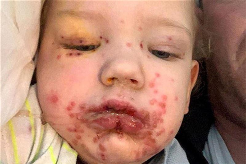 Ребенок попал в больницу, заразившись герпесом