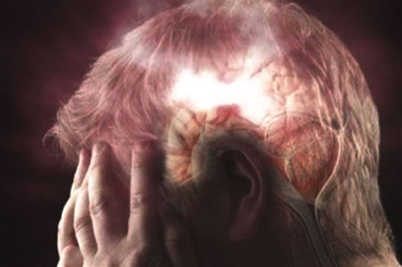 Ученые назвали причины преждевременного старения мозга