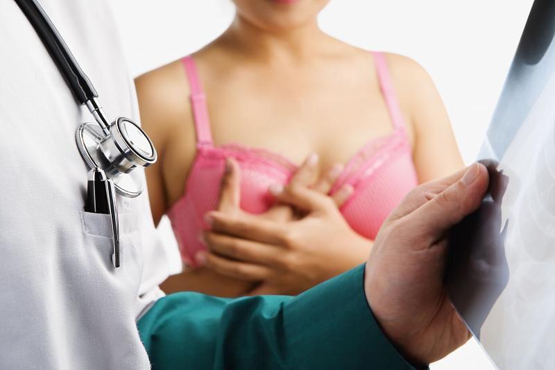 Ученые назвали продукт, подавляющий рак груди