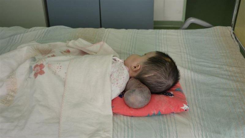 В Нур-Султане врачи удалили огромную грыжу мозга 2-месячному ребенку