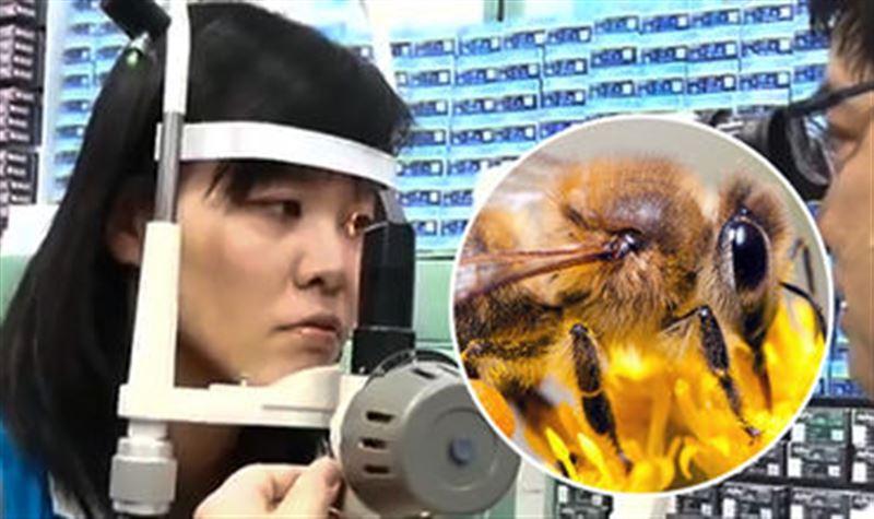 Из глаза девушки вытащили четырех живых пчел
