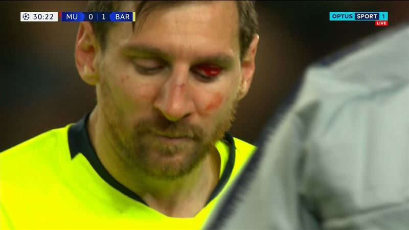 Месси разбили лицо до крови в матче с «Манчестер Юнайтед»