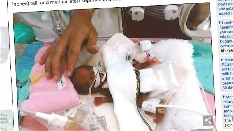 Самого маленького младенца скоро выпишут из больницы