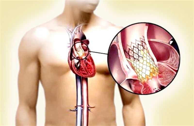 Ученые представили робокатетер, способный искать сердечные клапаны на ощупь