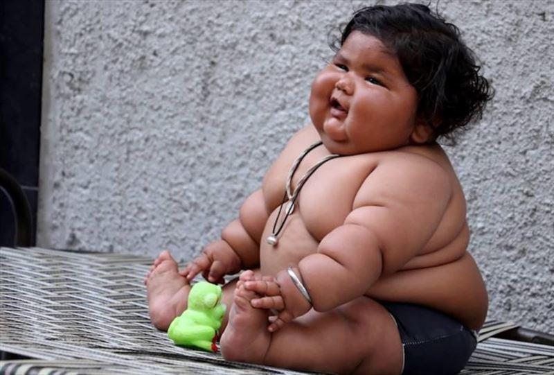 Названа основная причина детского ожирения