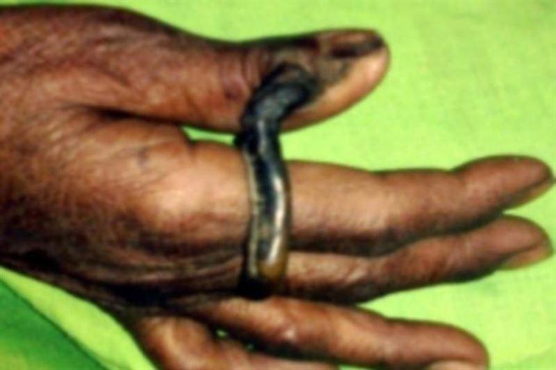 У жительницы Индии на пальце вырос 6-сантиметровый рог