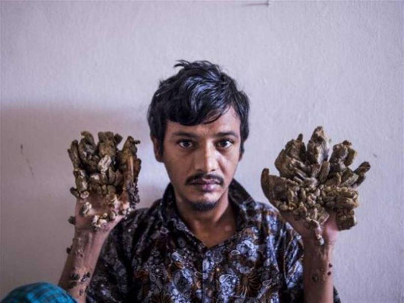 «Боль стала невыносимой»: «человек-дерево» просит ампутировать ему руки
