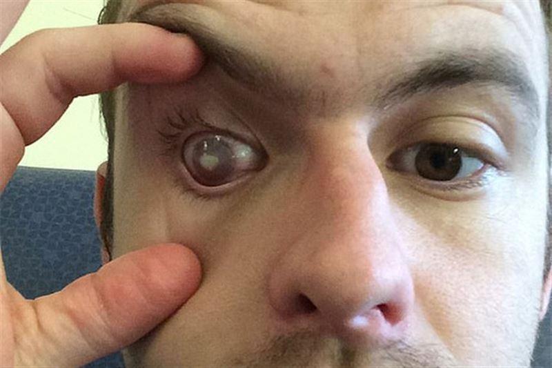 Британец ослеп после принятия душа в линзах