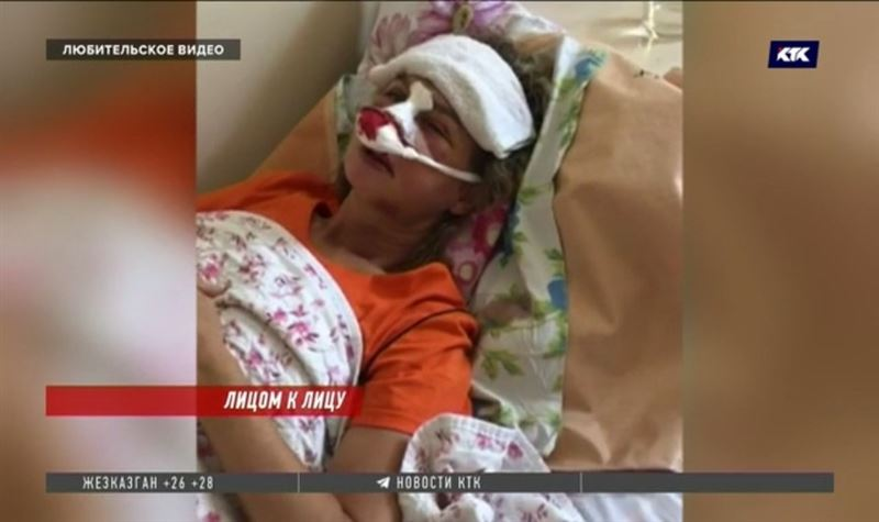 Дочь Светланы Божко о нападении на мать: «Была конкретная задача – изувечить лицо»