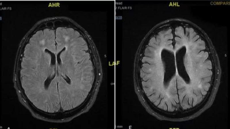 Врачи показали, что кокаин сотворил с мозгом пациента, шокировав снимками МРТ