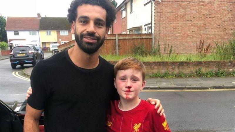 Мальчик разбил себе нос об столб в попытках получить автограф Салаха