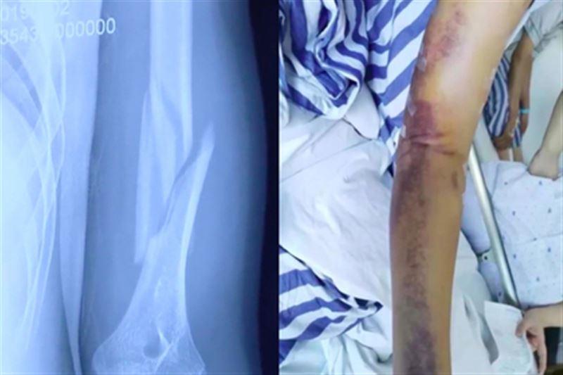 Житель Китая раздробил себе руку во время дружеского армрестлинга