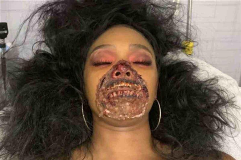 Зомби күйінде ауруханаға түскен актриса дәрігерлерді шошытты
