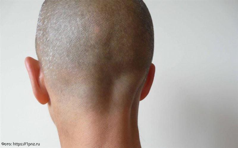 Мужчина побрил налысо супругу, обнаружив в еде волос