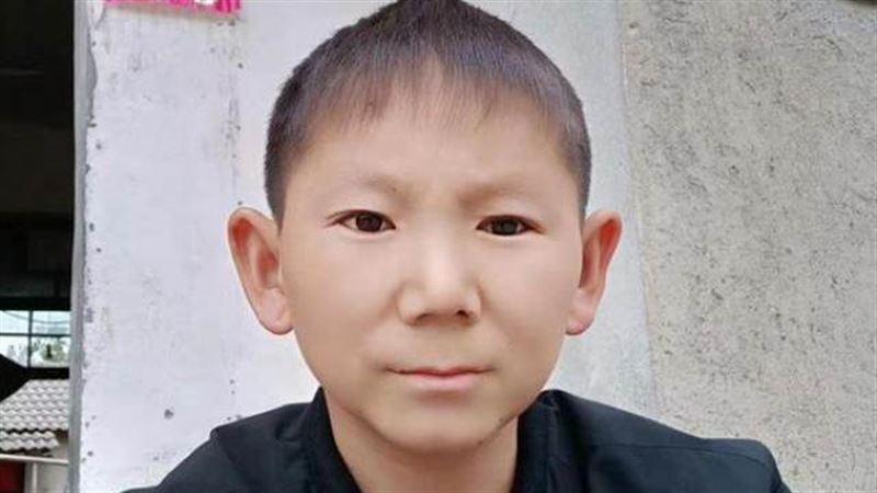 Из-за травмы головы китаец навсегда остался ребенком