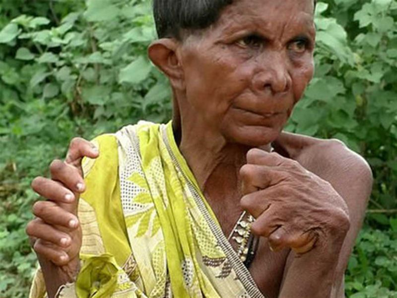 В Индии живет женщина с 32 пальцами
