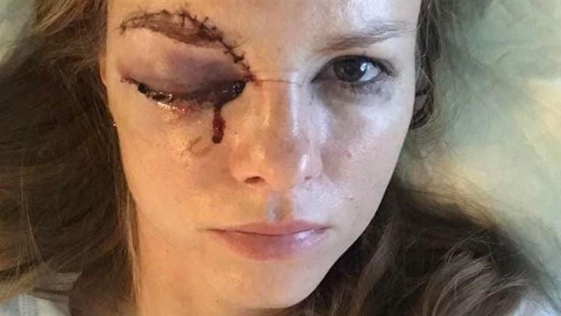 Журналистка серьезно пострадала во время хоккейного матча