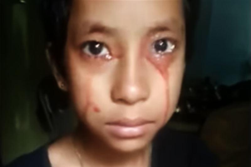 Кровью плачет и потеет 8-летняя девочка из Индии