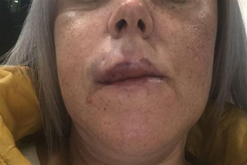У жительницы Шотландии после увеличения губы образовалась гематома