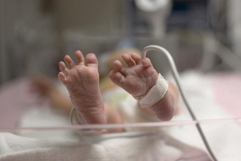 Алматыда жаңа туған нәрестеге күрделі ота жасалды