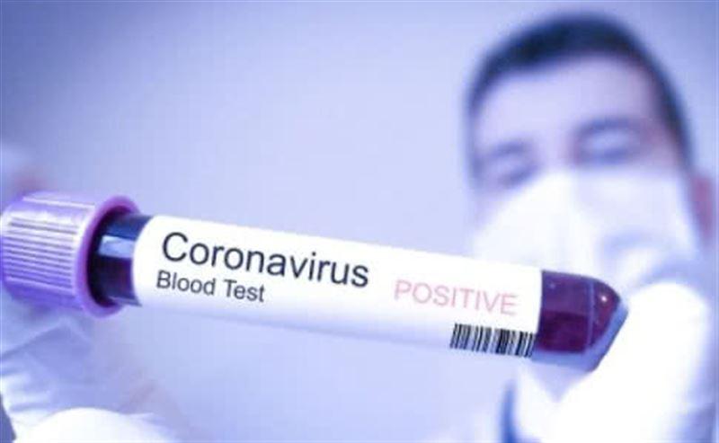 Бірде-бір қазақстандық шетелде коронавирус жұқтырған жоқ