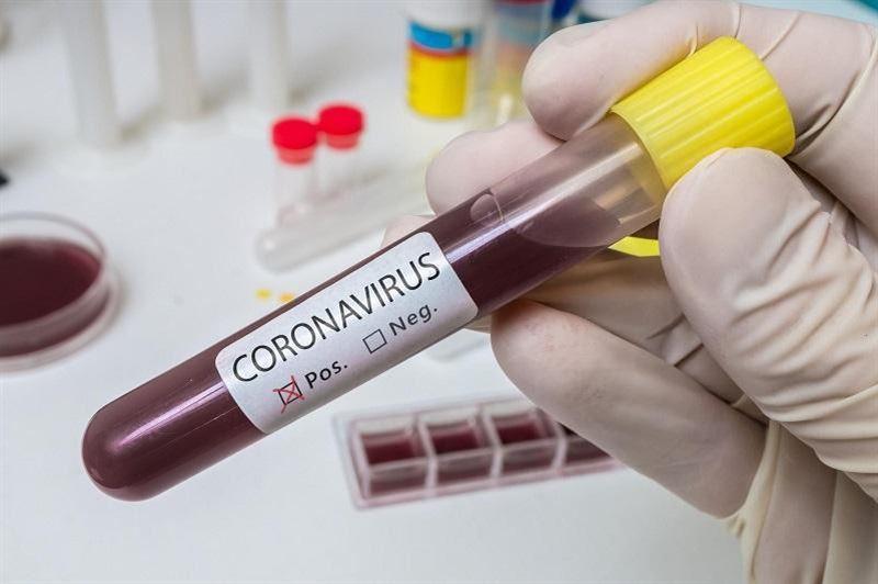 Қазақстанда коронавирус жұқтырғандар саны 112-ге жетті