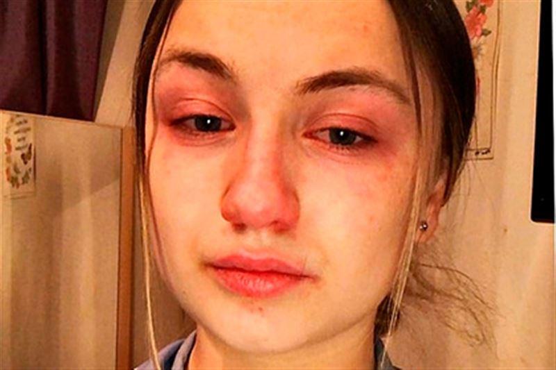 19-летняя медсестра рассказала о зараженных коронавирусом пациентах