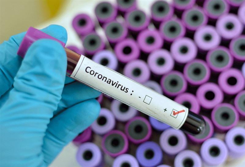 Елімізде коронавирус жұқтырғандар саны 629 адамға жетті