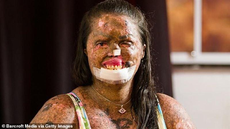 Хирурги отрезали девушке половину лица из-за редкой болезни