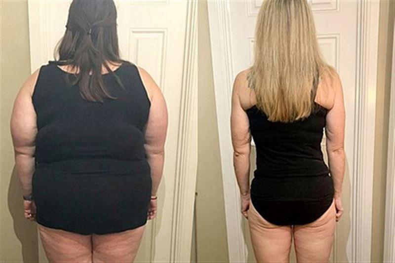 Девушка скинула 76 кг и раскрыла действенный способ похудения