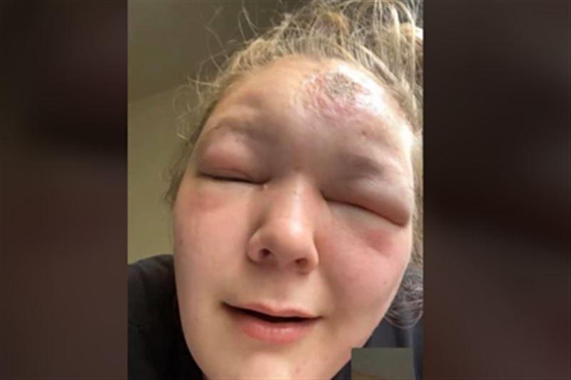 Девушка показала опухшее от солнца лицо и сравнила себя с Квазимодо