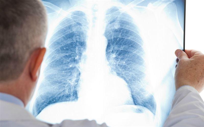 Пневмонияның алғашқы белгілері қандай: Дәрігер жауап берді