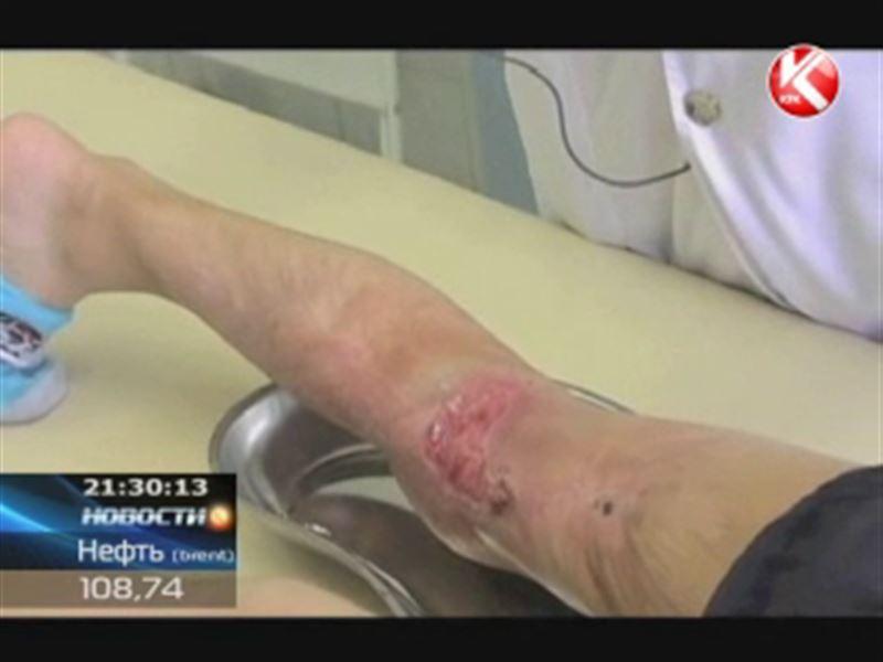 В казахстанских клиниках скоро появится искусственная кожа