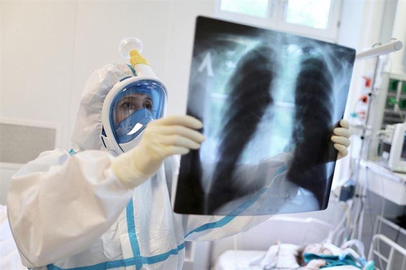 Коронавирустық инфекция белгілері бар пневмониядан 17 адам қайтыс болды