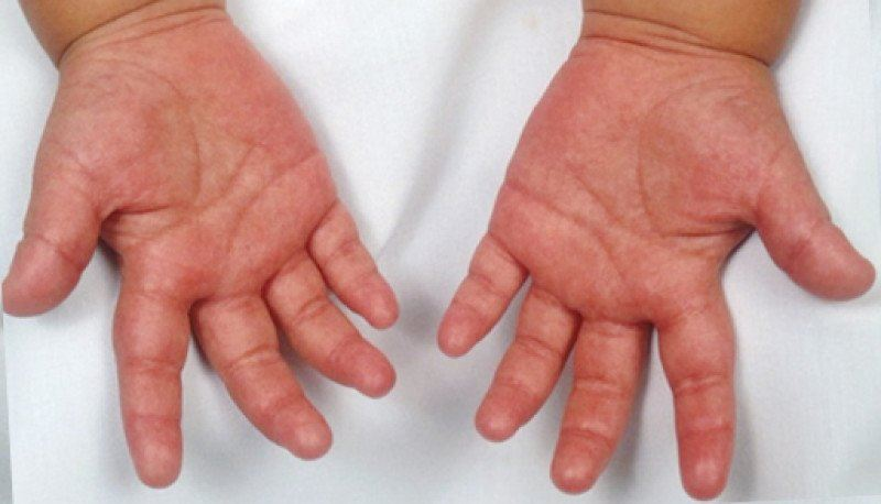 Қазақстанда үш баладан Кавасаки синдромы анықталды
