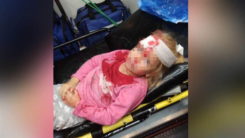 На акции протеста в Беларуси пострадал пятилетний ребенок