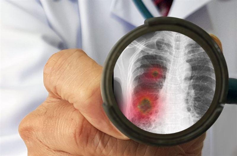 934 случая коронавирусной пневмонии зафиксировано в Казахстане за сутки