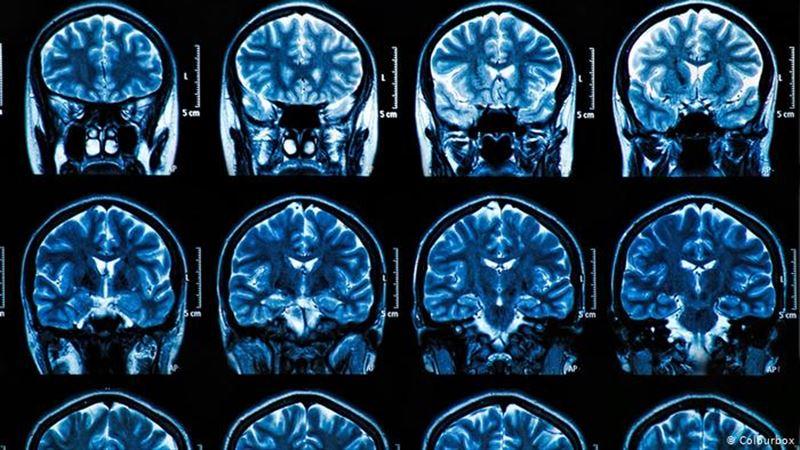 Ученые заявили о разрушительных последствиях коронавируса для мозга