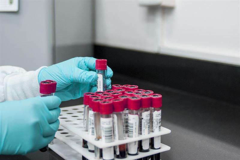 Өткен тәулікте 61адам коронавирус инфекциясын жұқтырған